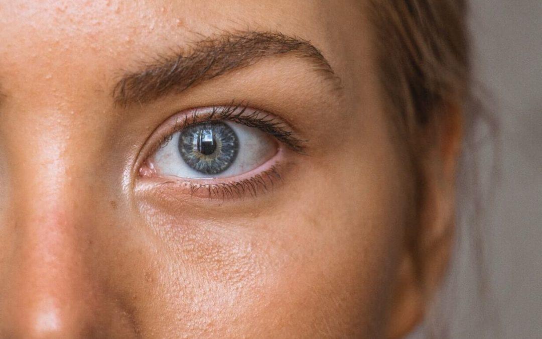 El acné no tiene edad – Todo lo que tienes que saber sobre el acné