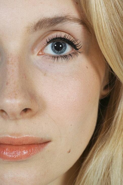 Rinomodelación sin cirugía – Cómo conseguir la nariz que quieres en 30 minutos